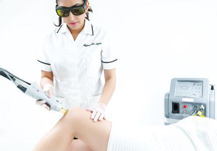 laser depilazione